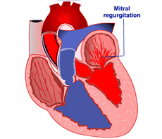What is mitral valve disease?